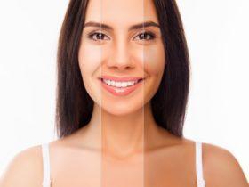 肌色が濃いと脱毛では損!? 肌トラブル別、レーザー脱毛対処法