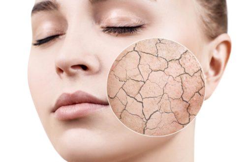 顔脱毛直後に肌が乾燥する理由と対処法から控えたい行動